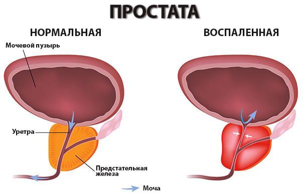 санатории для лечения простатита в крыму