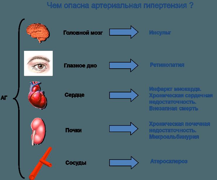 Артериальная гипертензия в санатории